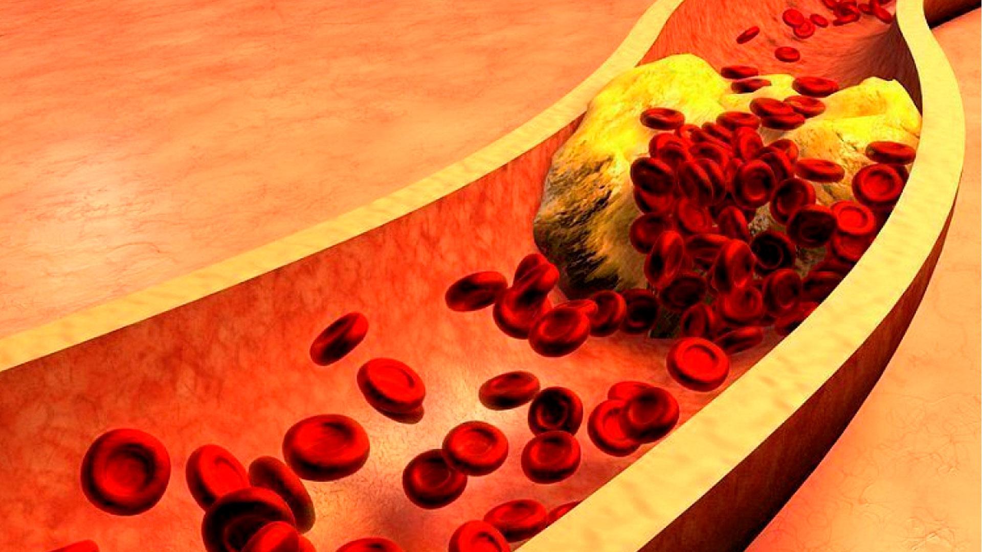 Diabete, quasi il 20% dei malati presenta ipertrigliceridemia nonostante le statine